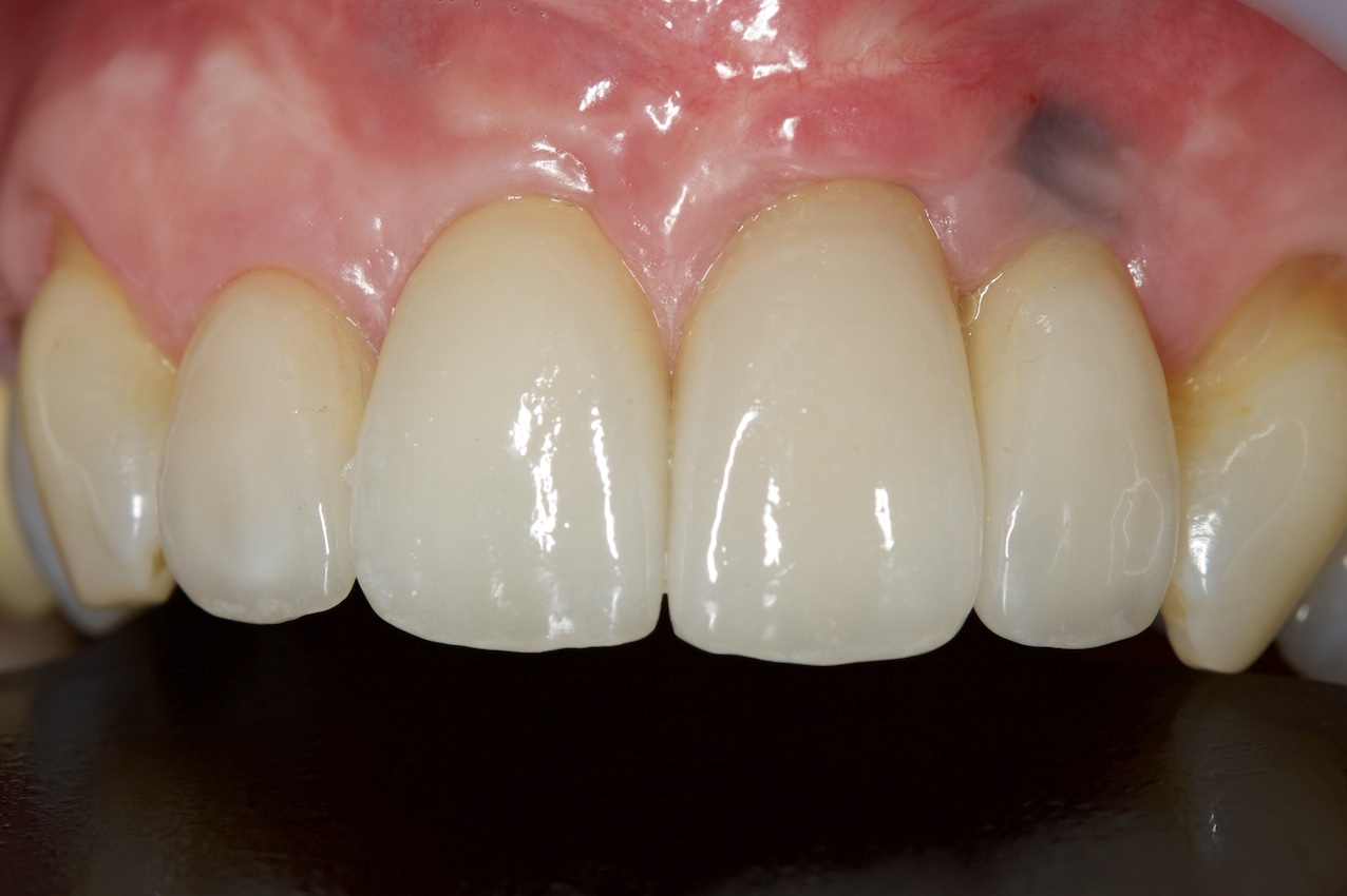 After-Multiple Dental Implants