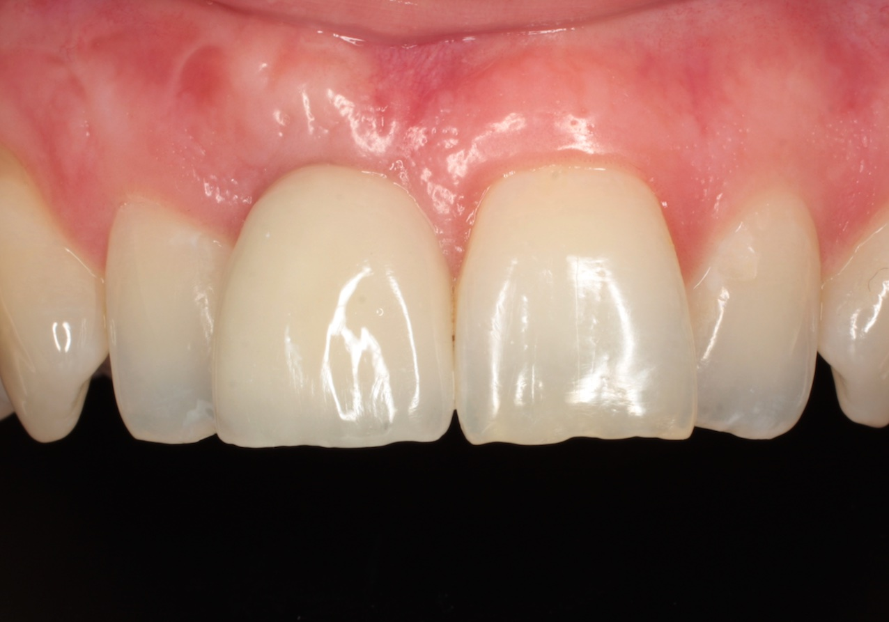 After-Dental Implant 1 tooth