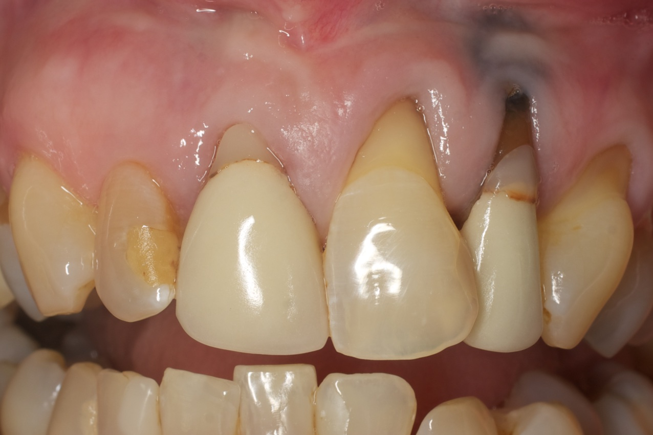 Before-Multiple Dental Implants
