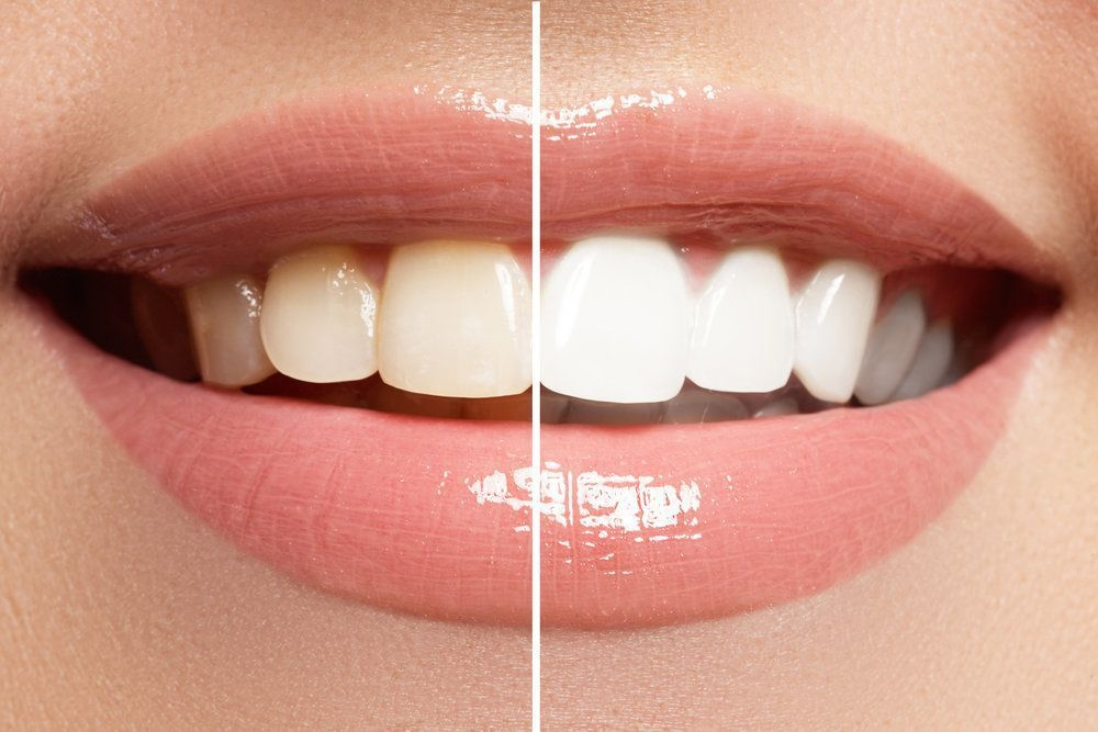 Teeth Whitening Treatments In Worcestershire West Midlands Roy