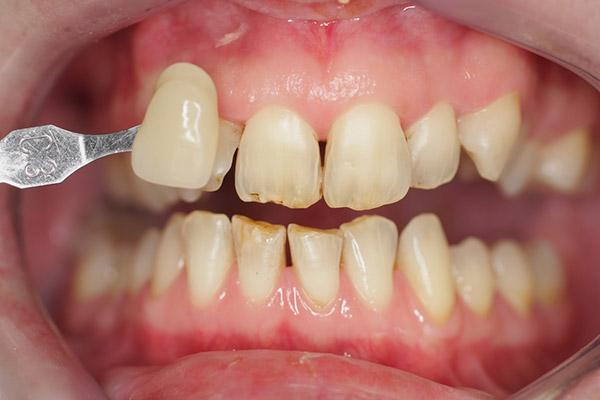 Before-Teeth Whitening
