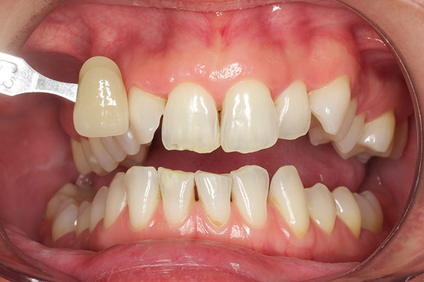 After-Teeth Whitening