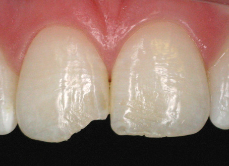 Before-Composite filling