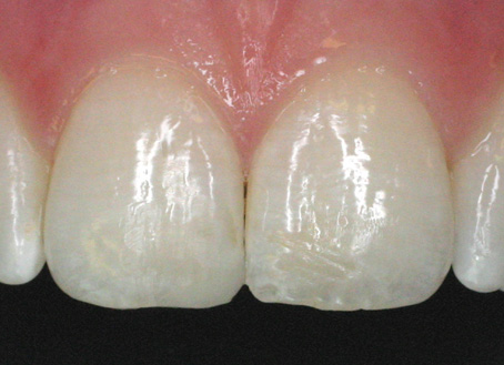 After-Composite filling