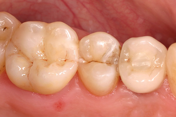 After-Tooth Inlays