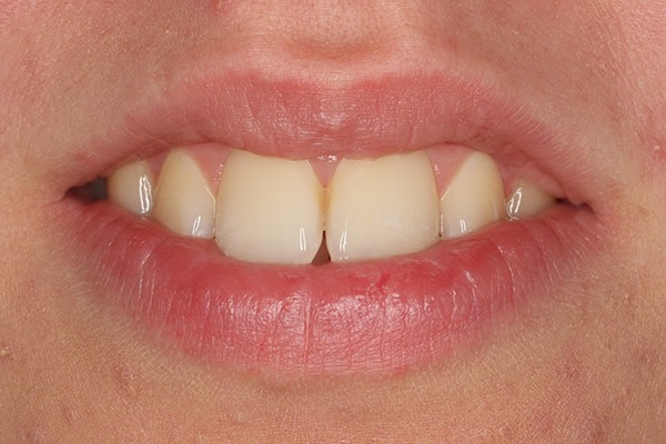 Before-Invisalign Three