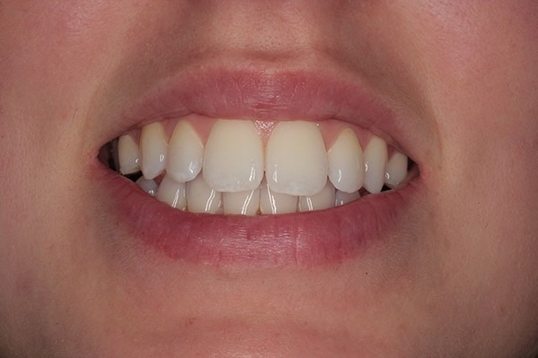 After-Invisalign Three