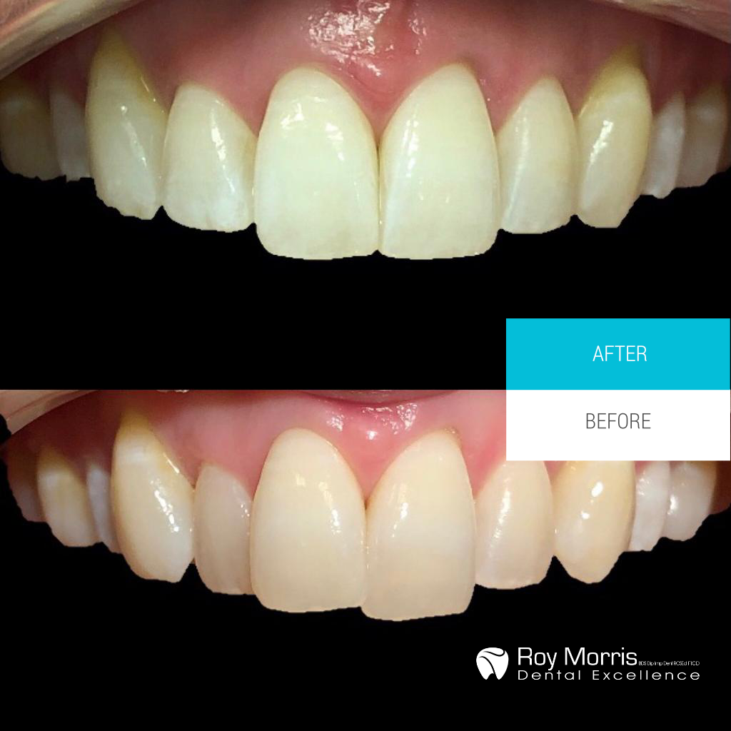 Invisalign Treatment Case Study