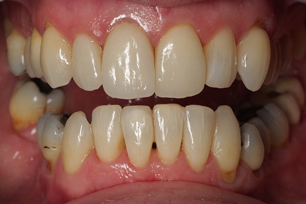 After-Invisalign Four