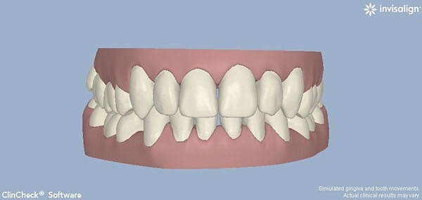 After-Invisalign Five B
