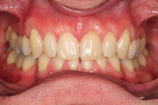 After-Invisalign Five