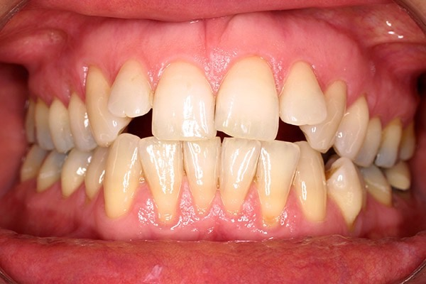 Before-Invisalign Six b