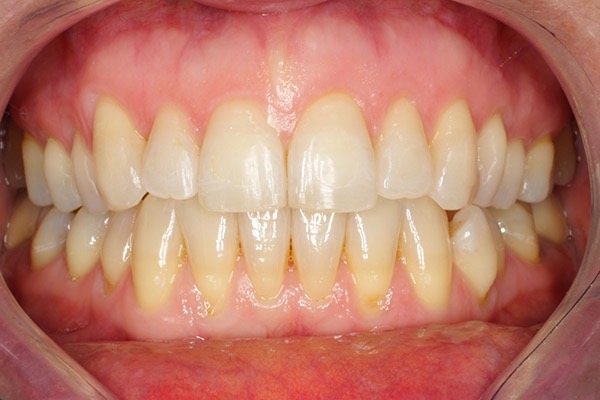 After-Invisalign Six b