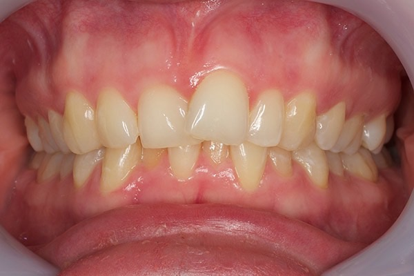 Before-Invisalign Seven b