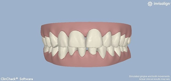 After-Invisalign Seven a