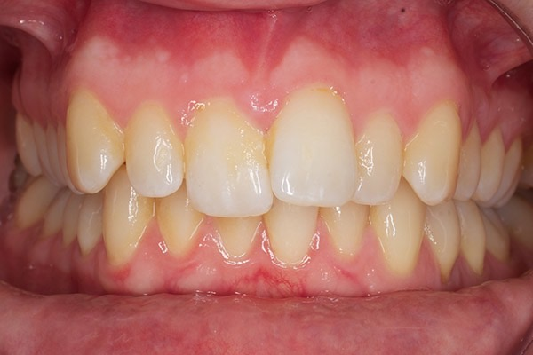 Before-Invisalign Eight b