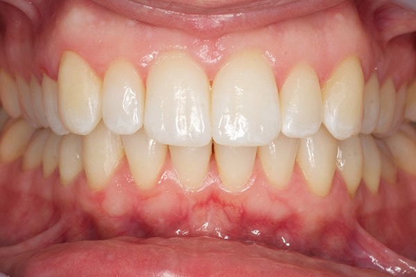 After-Invisalign Eight b