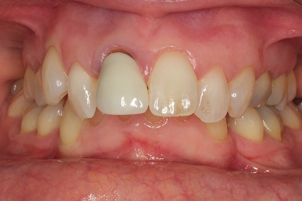 Before-Invisalign Nine a
