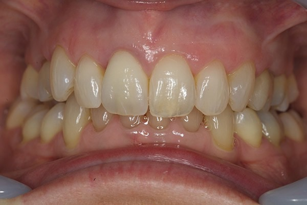 After-Invisalign Nine a