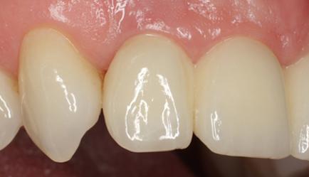 Multiple missing teeth implants