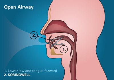 Open Airway