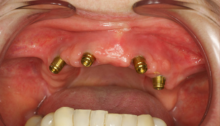Overdenture implant all missing teeth