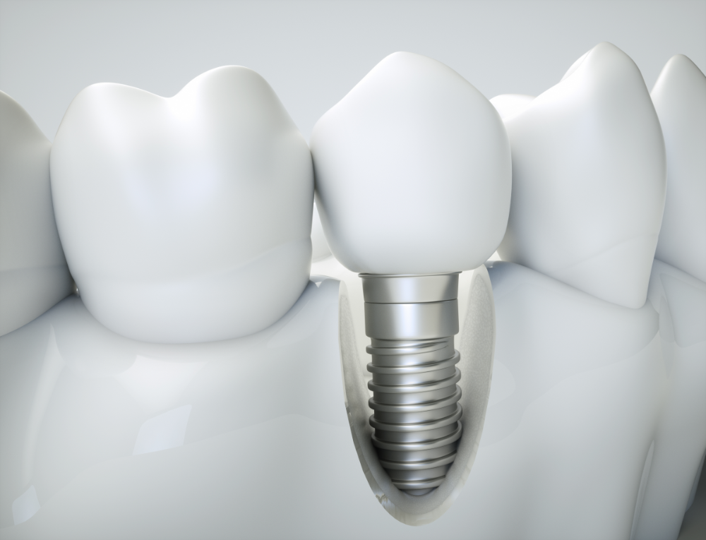 Replace a missing front tooth